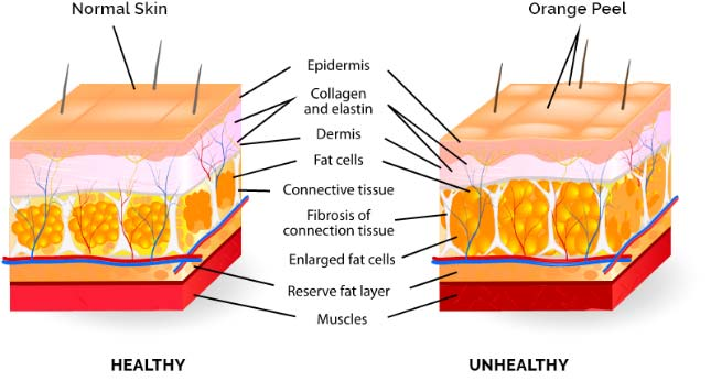 KeraHealth mechanism of cellulite