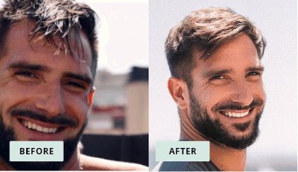 KeraHealth Before & After - Alessandro