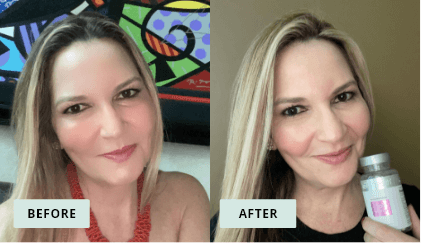 KeraHealth Before & After - Andreina