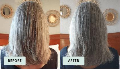 KeraHealth Before & After - Carol