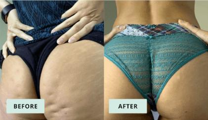 KeraHealth Before & After - Claudia