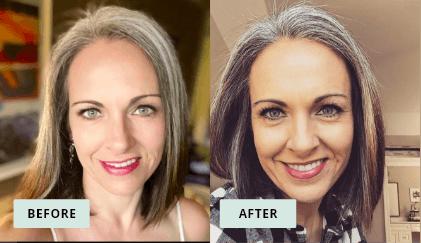 KeraHealth Before & After - Debbie
