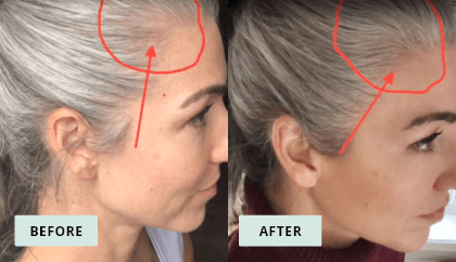 KeraHealth Before & After - Erica Johnson