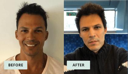 KeraHealth Before & After - Joel Nikanor