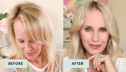 KeraHealth Before & After - Megan