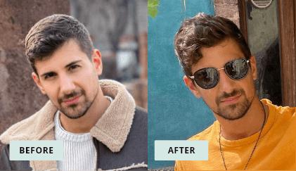KeraHealth Before & After - Matteo
