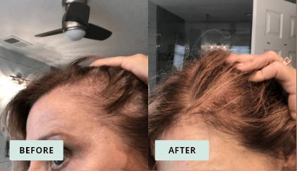 KeraHealth Before & After - Michelle Garrit