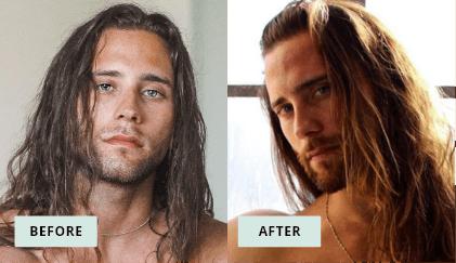 KeraHealth Before & After - Sammy Elliott