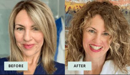 KeraHealth Before & After - Susan