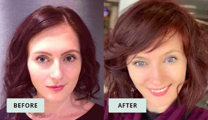 KeraHealth Before & After - Yelena Nikitskaya