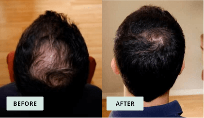 KeraHealth Before & After - Leo