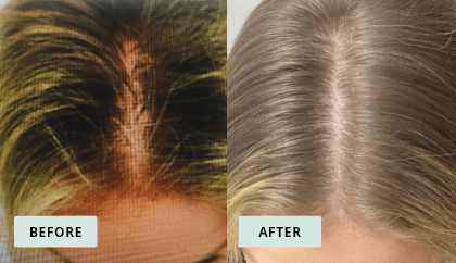 KeraHealth Before & After - Nicole